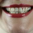 Sund mund uden paradentose